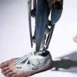 Desarrollan técnica para evitar amputación de extremidades en soldados